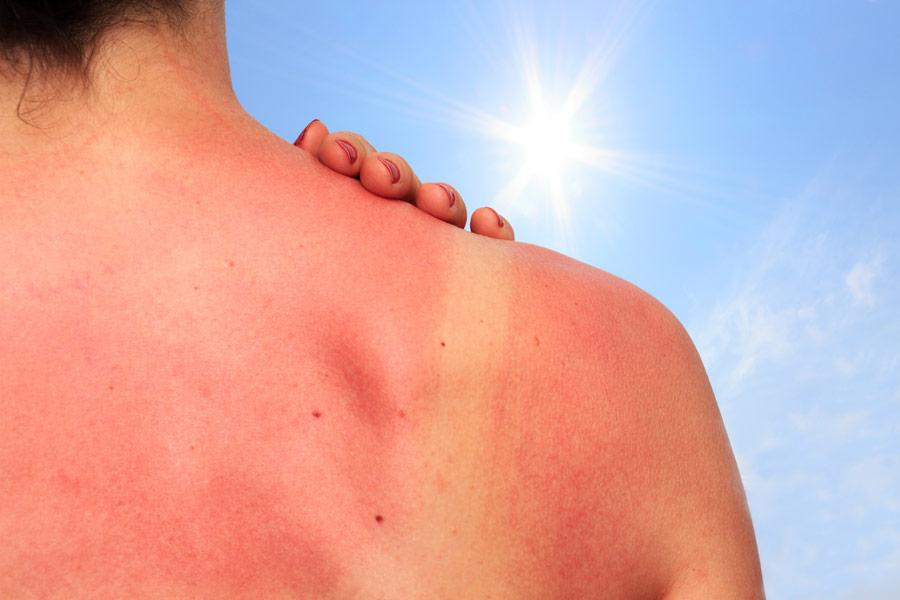 Солнечная эритема