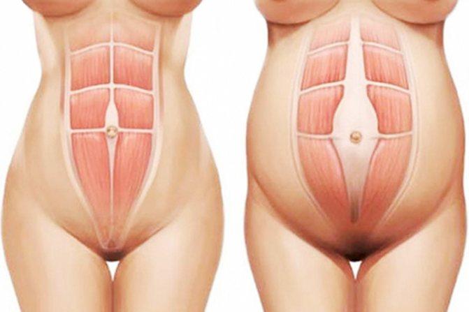 абдоминальный диастаз